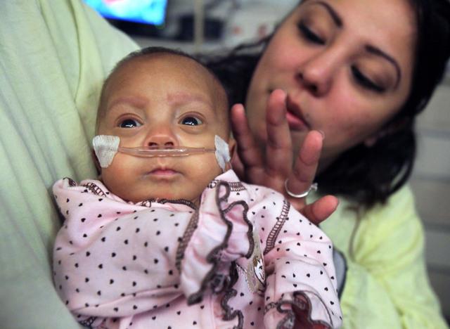 Sale del hospital bebé más pequeña