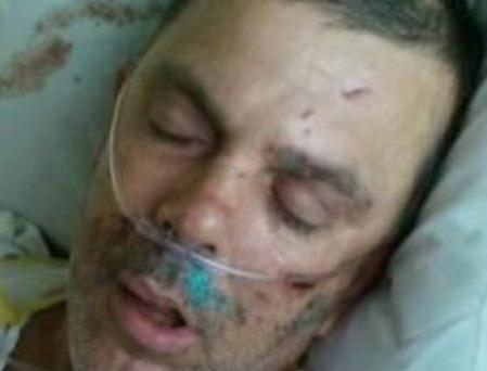 El hombre, identificado como Matthew Owens, aún se encuentra hospitalizado por encontrarse en condición crítica a raíz de los golpes  que recibió.