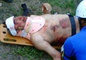 Una fotografía sacada de Twitter alega que éste es Andy Montañez. cuando era atendido por los paramédicos en el lugar del accidente.