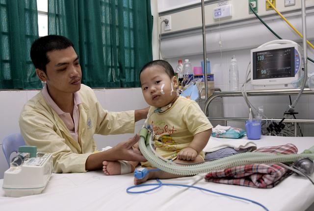 Tran Nam Trung ajusta el tubo del respirador en la garganta del pequeño Minh Giang, de 20 meses de edad.