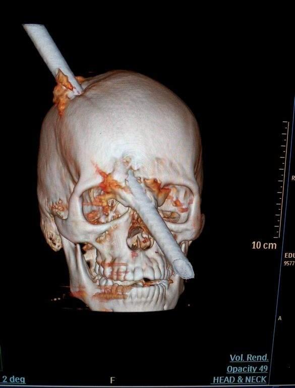 Barra de acero atraviesa cráneo de obrero; sobrevive (foto)
