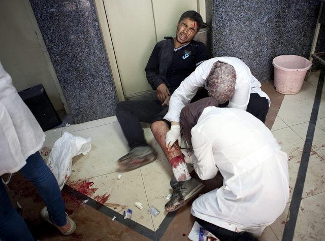 Un civil herido en un bombardeo de la fuerzas leales al régimen sirio, en el hospital Dar al Shifa, en Aleppo, Siria.