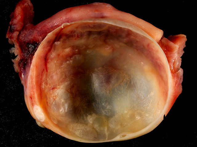 Learning to live with an ovarian cyst