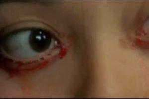 Joven que llora sangre impacta a Chile (Video)