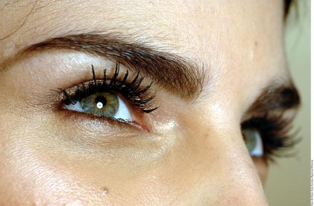 como bajar la inflamacion de un ojo morado