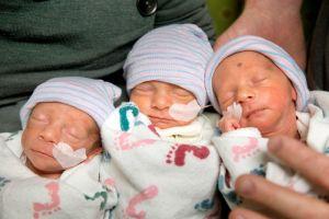 Nacen trillizas idénticas de forma inusual en California