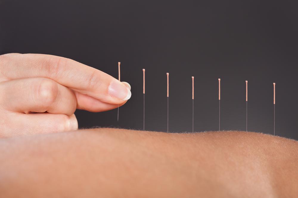 Descubre los beneficios de la acupuntura