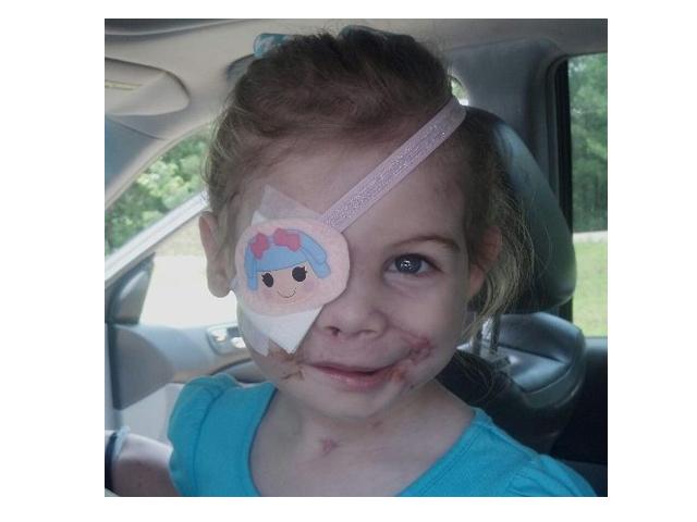 Ofrecen cirugía gratuita a niñita desfigurada que fue atacada por 3 pit bulls
