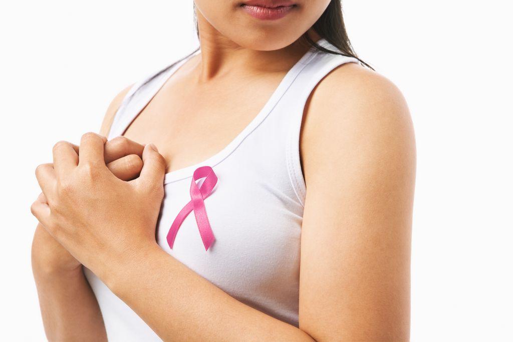 Sostén y prótesis que muchas mujeres con mastectomía usan en uno o ambos senos cuando no tienen una cirugía de restauración.