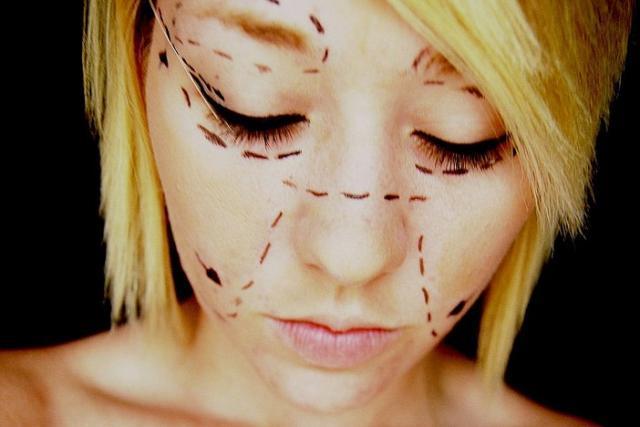¿Es sano que los adolescentes se realicen cirugías cosméticas?