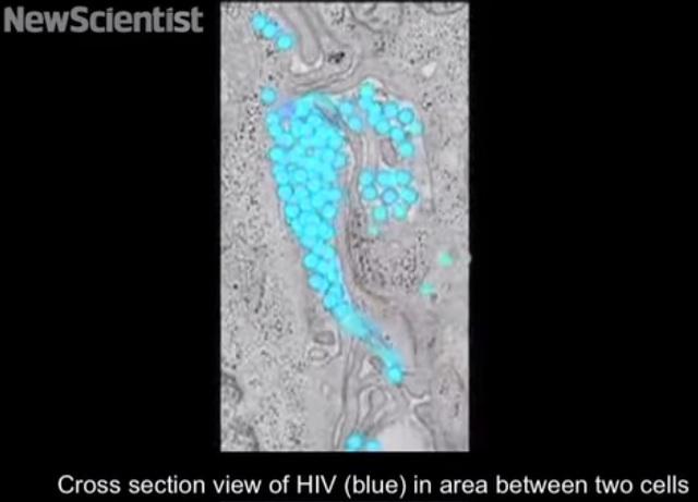 Mira cómo se extiende el VIH por el cuerpo en tiempo real (VIDEO)