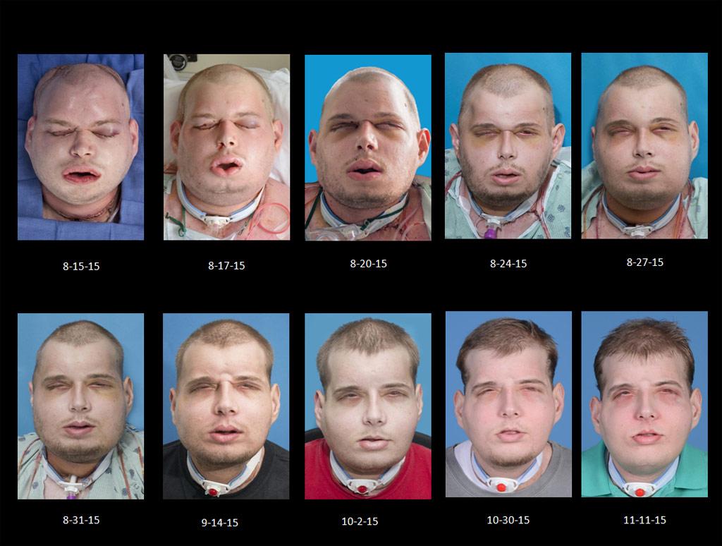 Hardison inmediatamente después del transplante de cara y durante la recuperación.