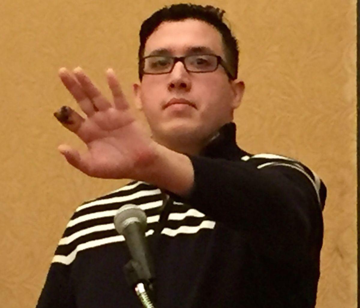 Vicente Garza muestra los daños a la mano que sufrió por una presunta explosion de un cigarillo electrónico.