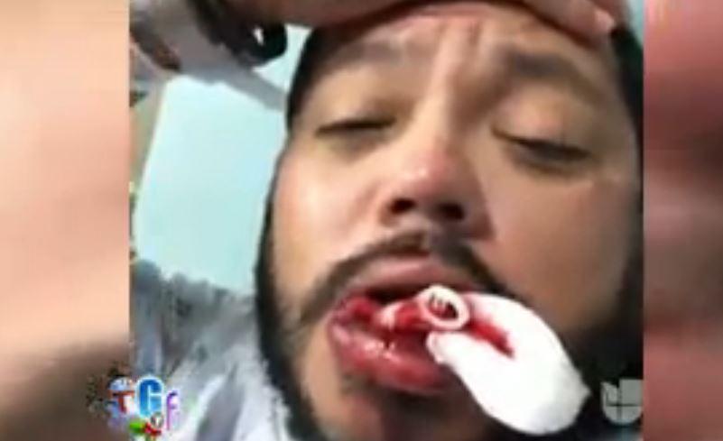 A.B. Quintanilla termina su noche de copas sin dientes (fotos)