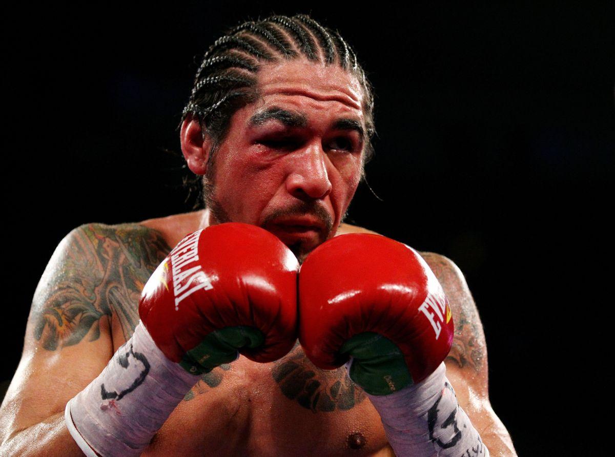 Antonio Margarito sufrió un grave castigo en su ojo derecho en su segunda pelea con Miguel Cotto.