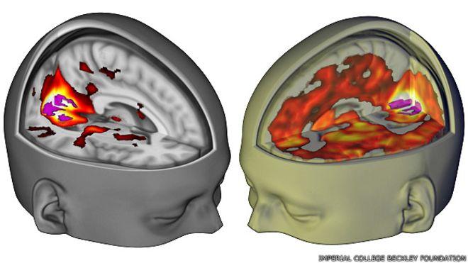 Esto pasa en el cerebro al consumir LSD