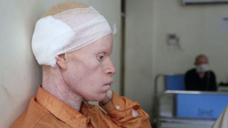 El mayor asesino de albinos es el cáncer de piel. En África la mayoría de los albinos mueren entre los 30 y 40 años.