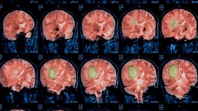 Escáneres cerebrales fallan hasta 70%