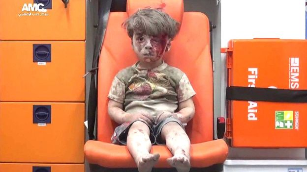 Video: El niño rescatado de bombardeo en Siria; su imagen conmueve al mundo