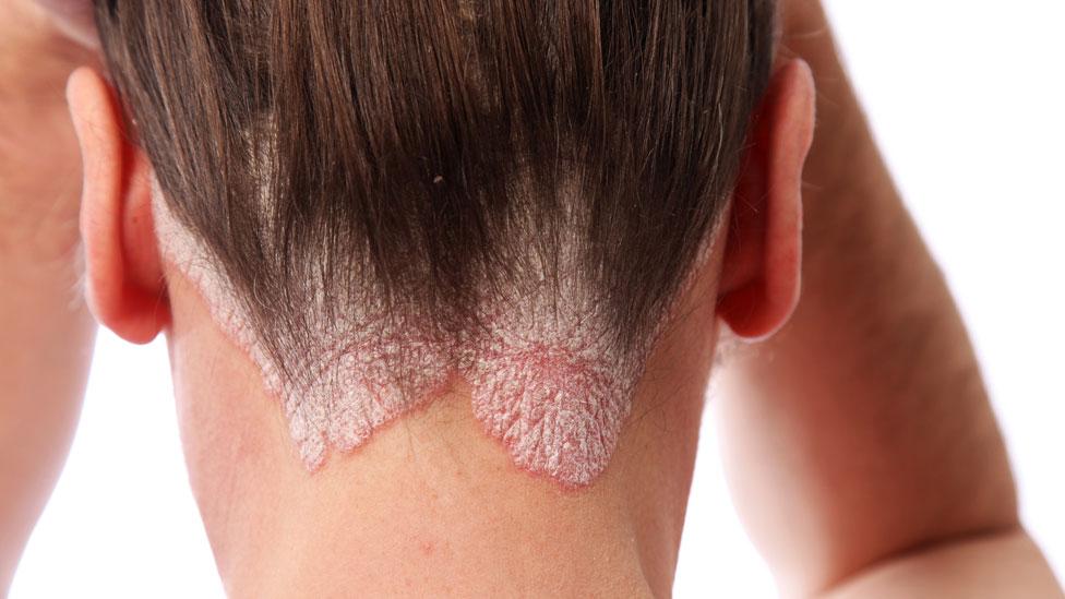 La psoriasis, una enfermedad que no solo afecta a la piel, sino golpea duramente a la autoestima