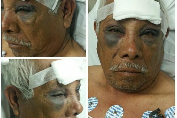 Este paletero tiene 71 años, pero eso no detuvo a los ladrones que lo golpearon sin piedad
