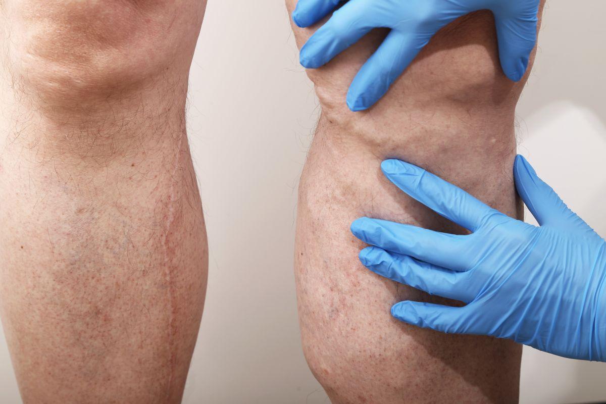 femei varicoase masculine dacă picioarele trage în varicoză
