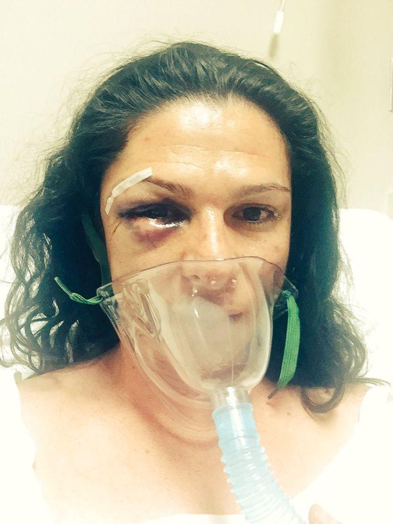 Video: Así fue la agresión contra la senadora Ana Guevara
