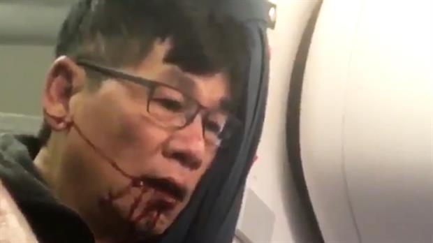 David Dao, el pasajero de United Airlines que terminó con la cara ensangrentada luego de que lo expulsaran de su asiento
