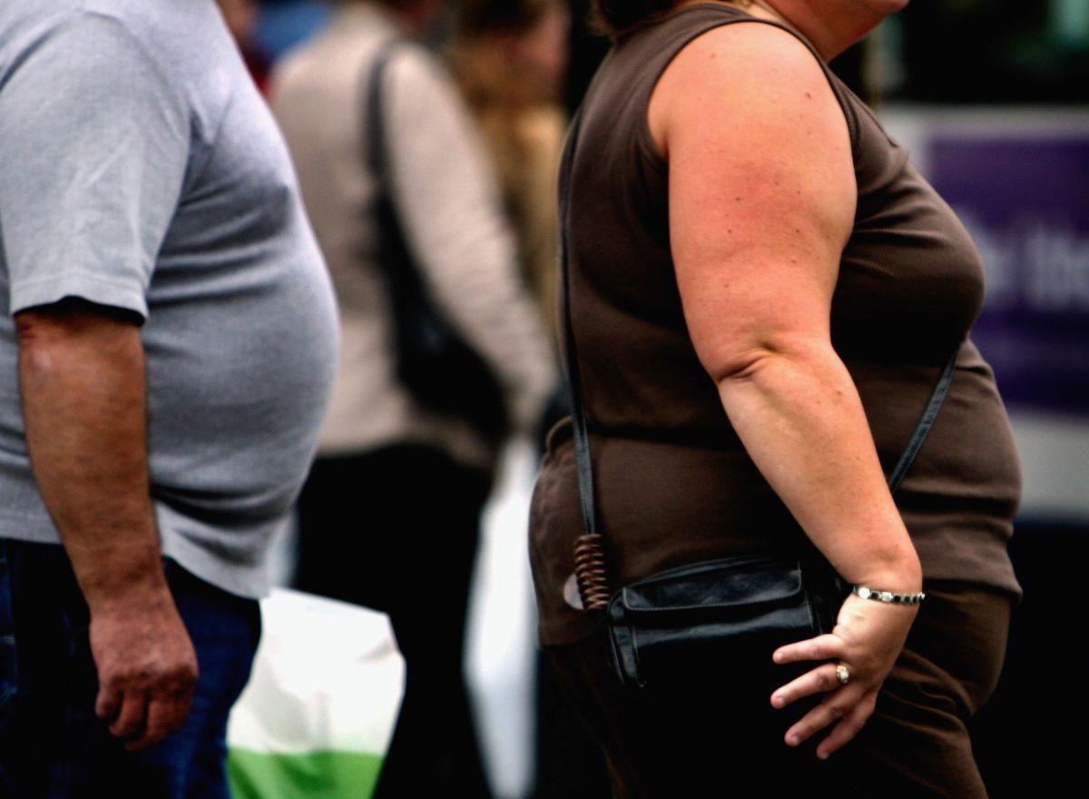 Obesidad, un problema de salud pública.