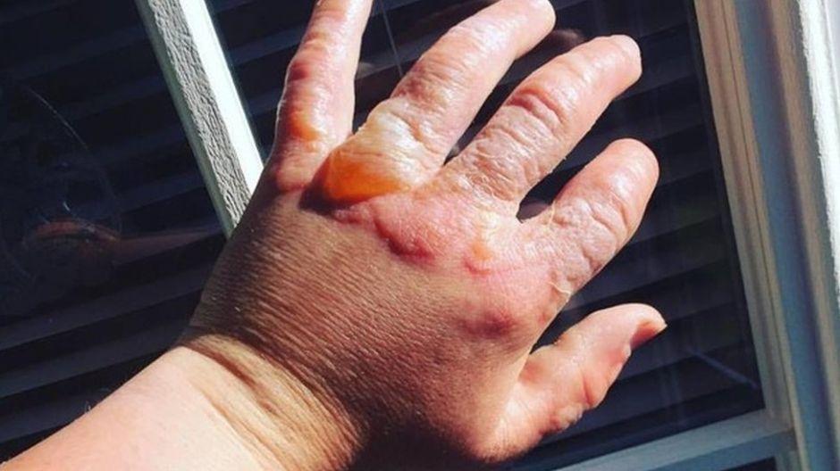 ¿Por qué cortar naranjas, limones y otras plantas al Sol puede dañar o quemarte la piel?