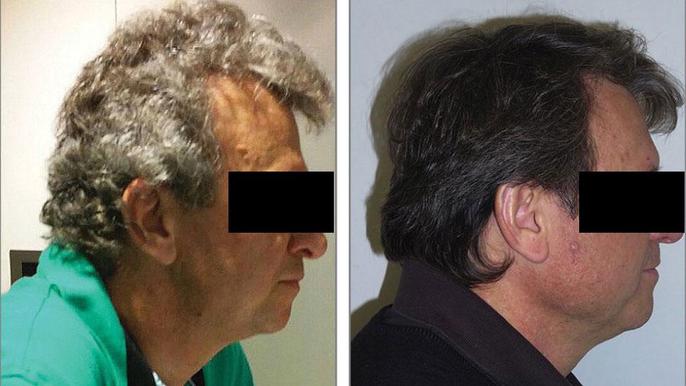 El tratamiento experimental para el cáncer que solo provoca cambio de color del pelo