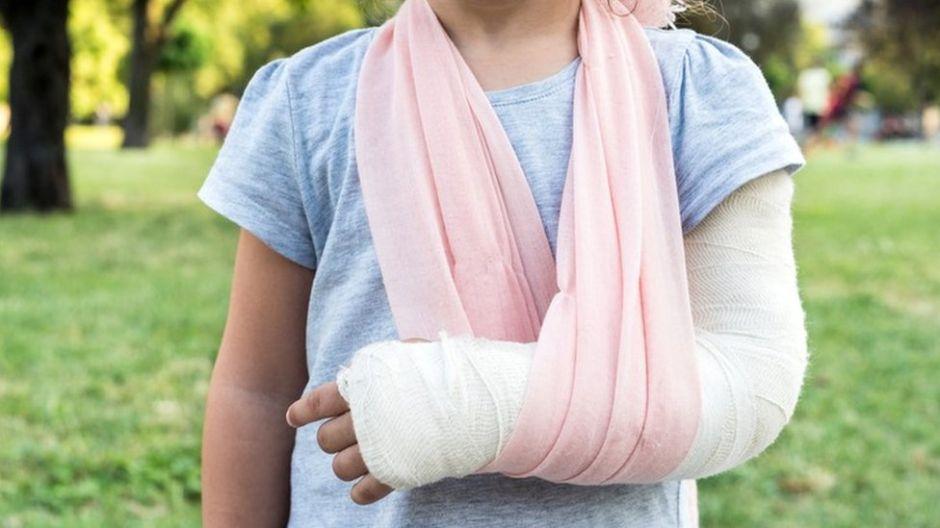 Una joven se fractura el pulgar. La operan y termina con el dedo gordo del pie en la mano