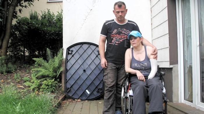 Mujer pierde extremidades por culpa de un mosquito