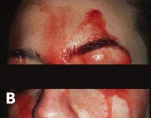La chica que suda sangre y tiene desconcertados a los médicos