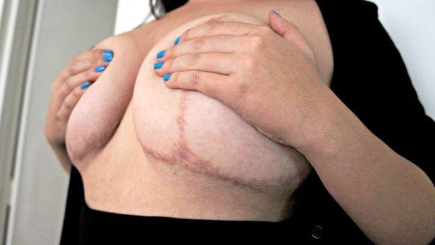 A los pacientes de cirugía plástica muchas veces los reclutan en peluquerías, en spas o en universidades.