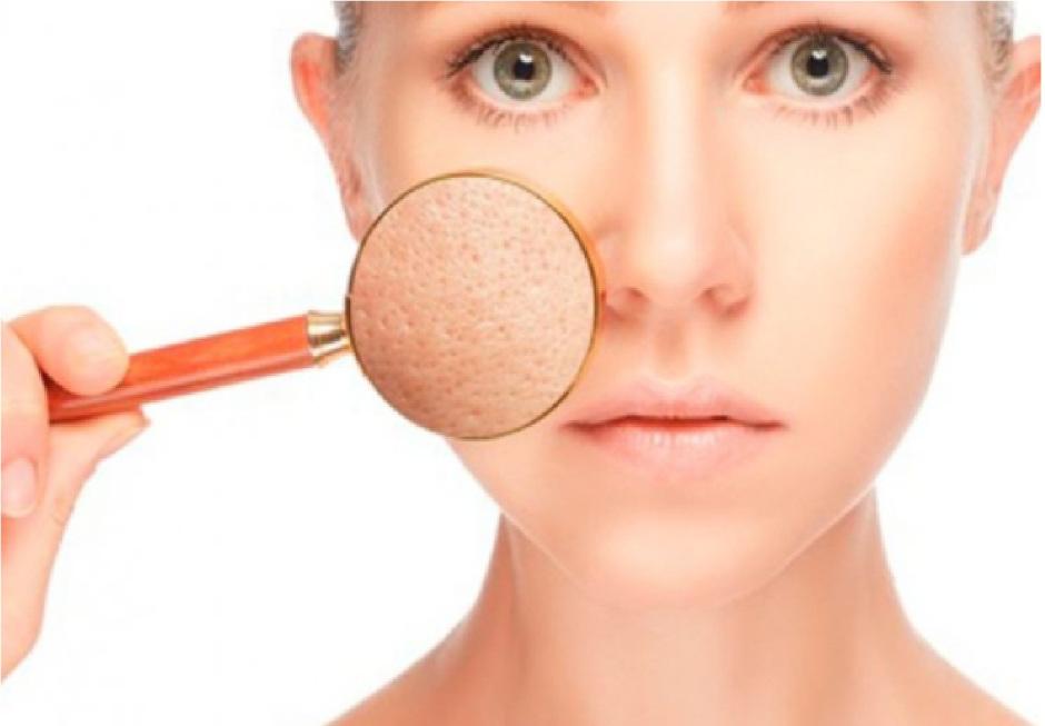 4 Remedios Caseros Para Quitar El Brillo A Los Poros Abiertos La Opinión