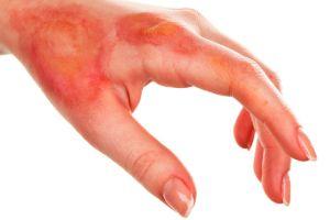 5 remedios caseros para aliviar las quemaduras