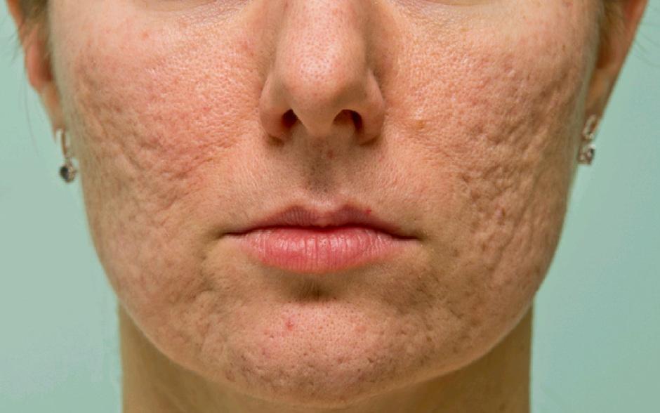 ¿Sabías que el acné es causado por una bacteria? Descubre aquí cómo eliminarla