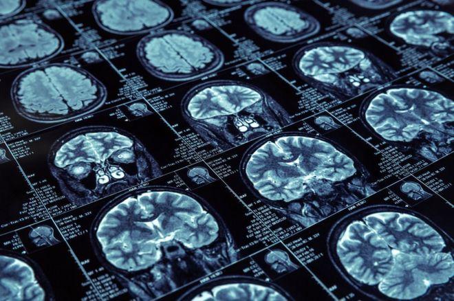 La región de México en donde surgió una mutación genética ligada al Alzheimer