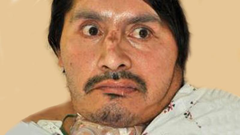 Piden ayuda para identificar a hombre internado en el Centro Médico USC