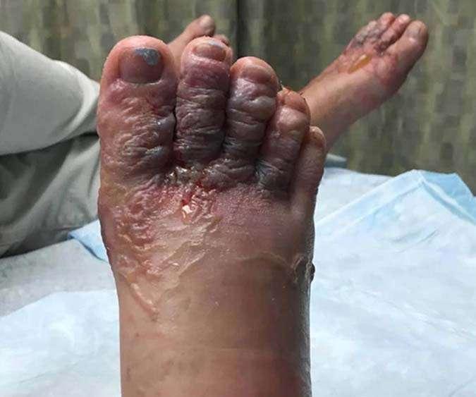Canadienses van de vacaciones a Dominicana y terminan con los pies parasitados