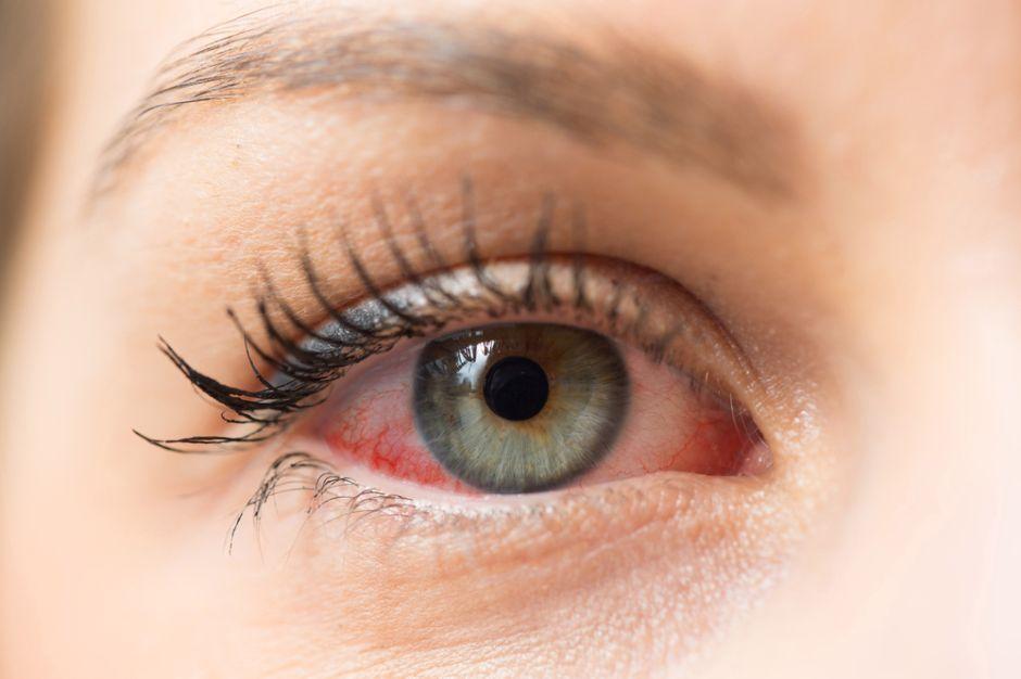 El mejor remedio casero para la infección bacteriana del ojo