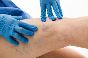 Cómo eliminar las venas varicosas