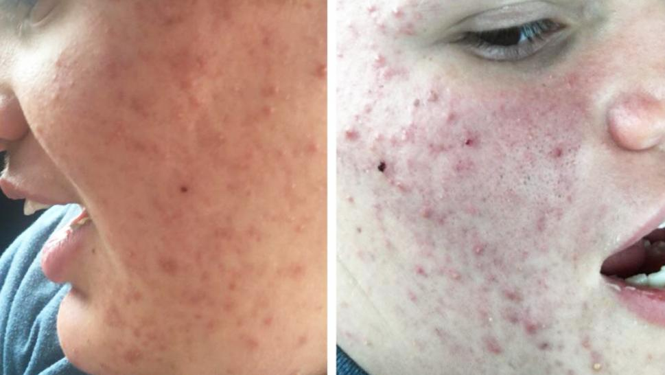 Una joven busca ayuda en internet para el acné de su hermano autista y la respuesta es increíble