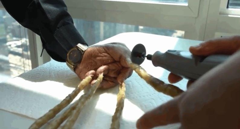 El hombre que pasó más de 60 años sin cortarse las uñas
