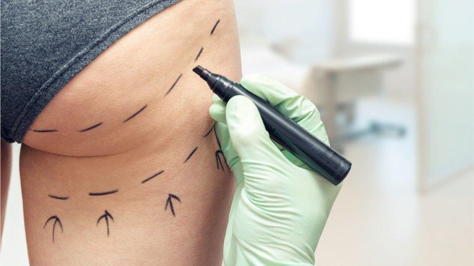 Mujer se opera las nalgas y las cicatrices la dejaron deforme