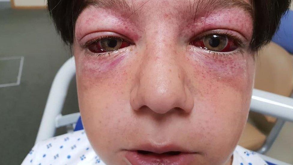 Quedaron así sus ojos por culpa de peligroso reto viral