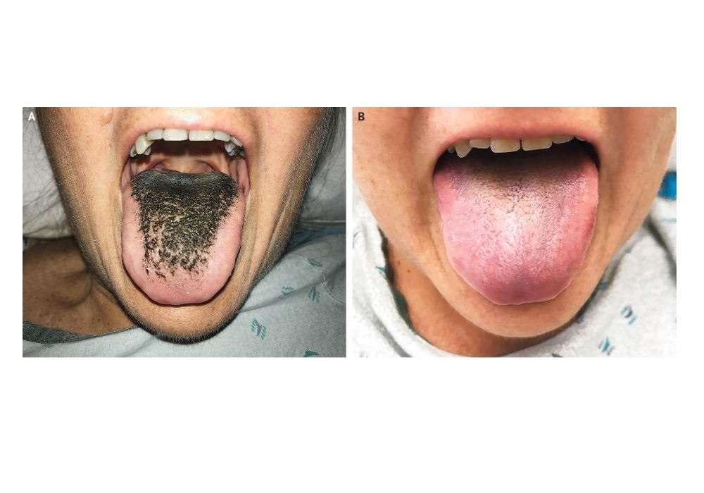 Son varios los factores que pueden ennegrecer la lengua.