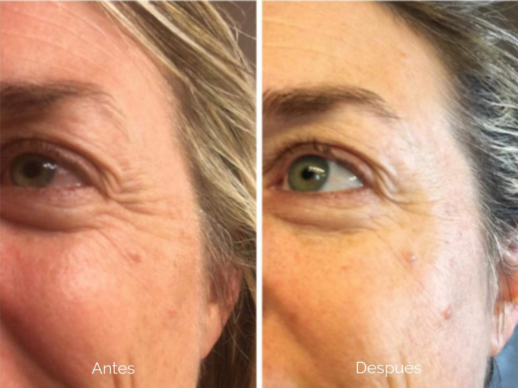 8 Cremas Para Las Arrugas Que Harán Que Nunca Necesites Botox La Opinión