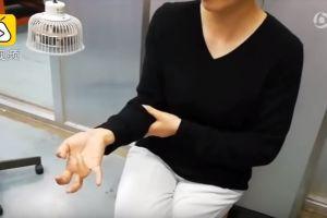 Video: Usar el celular le paralizó los dedos